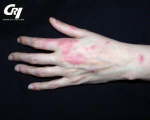 hids rash photo