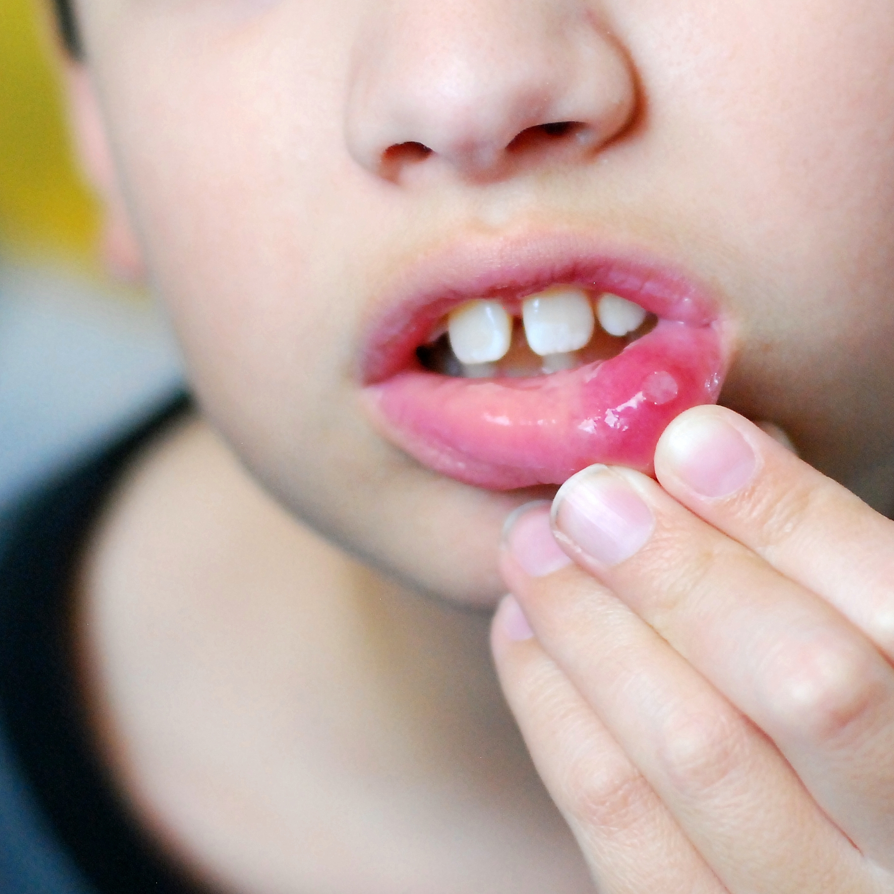 Mouth Ulcers | Health | Patient