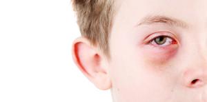 conjunctivitis symptom TRAPS